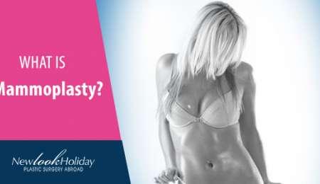 what-is-mammoplasty.jpg