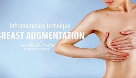 breast-augmentation-inframammary-technique.jpg