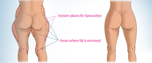 image of liposuction areas