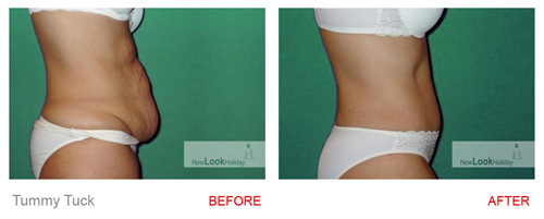 Tummy tuck before after from the side