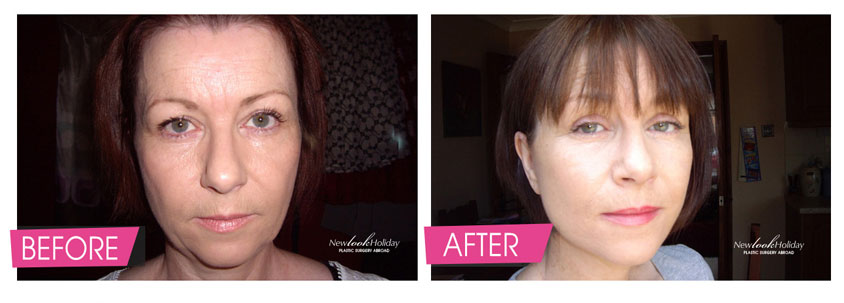 SMAS Facelift including Neck lift and Eyelid