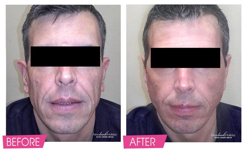 MACS Face Lift and Ear Correction