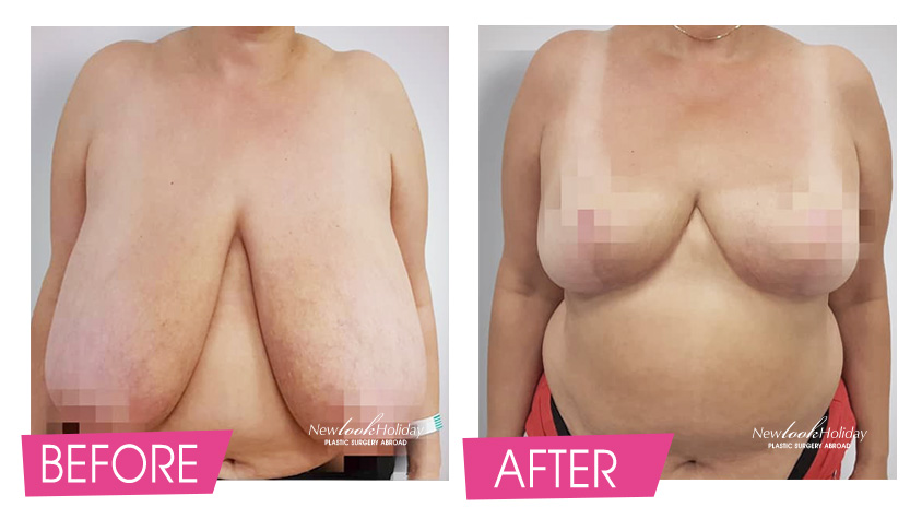breast-reduction-before-and-after-2.jpg