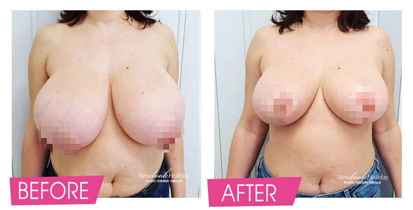 breast-reduction-before-and-after-2-1.jpg