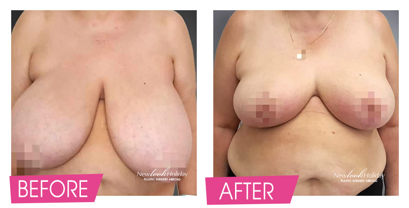 breast-reduction-before-and-after-3.jpg