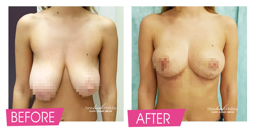 breast-lift-before-and-after-2.jpg