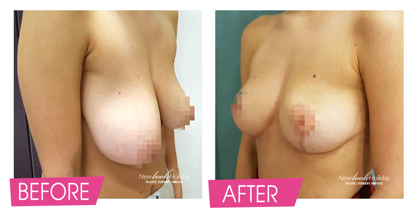 breast-lift-before-and-after-2-2.jpg