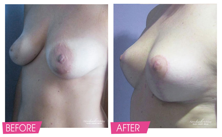 Results of Breast Lift Before and After