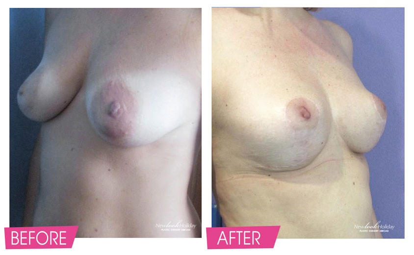 breast-lift-before-and-after-3.jpg