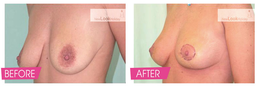 breast-lift-before-and-after-4-2.jpg