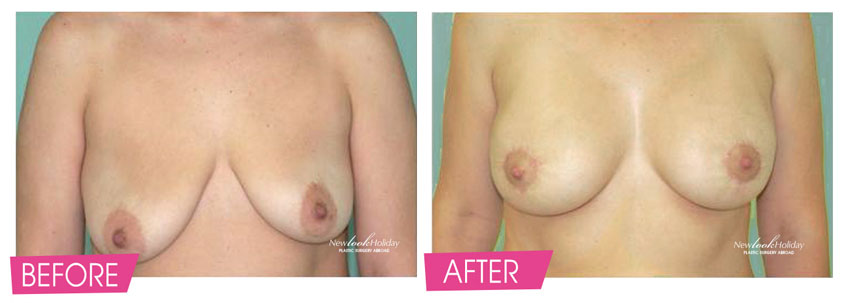breast-lift-before-and-after-6.jpg