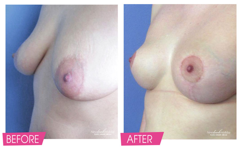 breast-lift-before-and-after.jpg