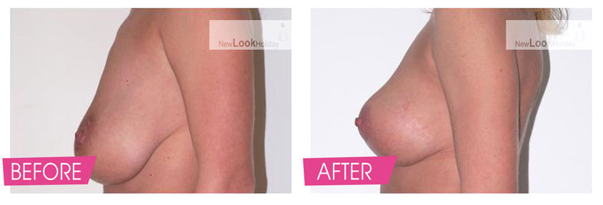 breast-lift-with-augmentation-before-and-after-2.jpg