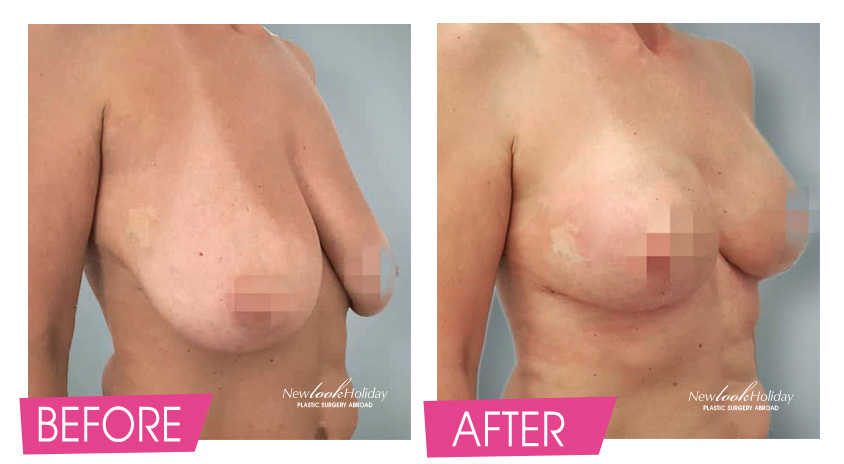 Breast Augmentation with Breast Lift photo
