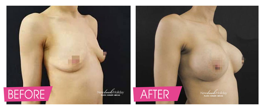 Breast Augmentation with round implants inserted under the muscles