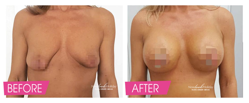 Tuberous Breast Augmentation with Circumareolar Breast