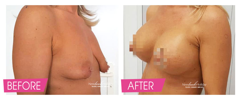 Tuberous Breast Augmentation with Circumareolar Breast Lift Before and After photo