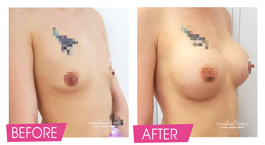 Round implants inserted under the muscles before and after photo
