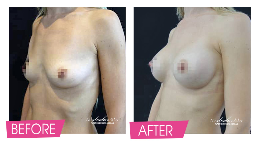Breast Augmentation with anatomical implants before and after
