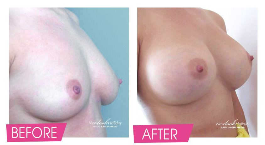 Breast Augmentationbefore and after