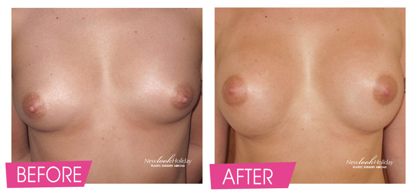 breast-augmentation-before-and-after-16.jpg