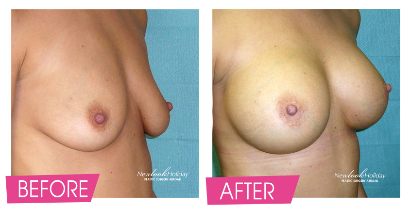 breast augmentation before left and after right photo