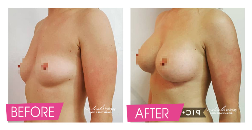 Breast Augmentation with round implants Before and After