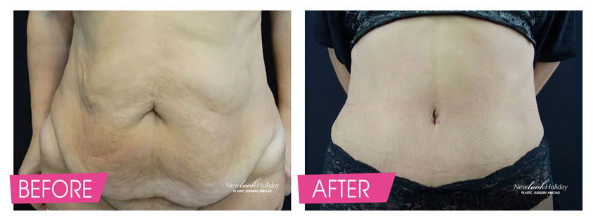 Full Tummy Tuck with muscle tighteting and reposition of navel