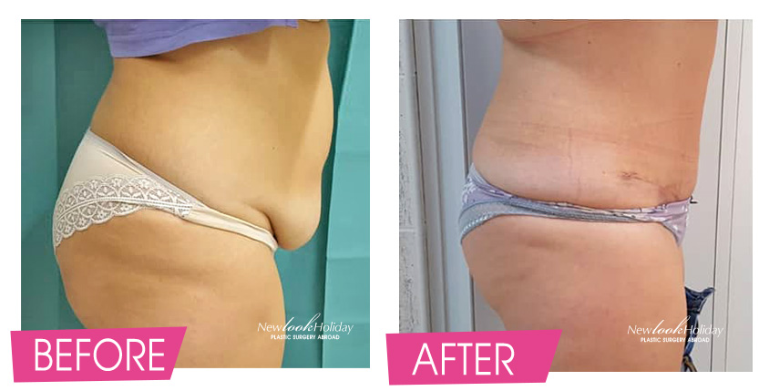 Full Tummy Tuck with muscle tighteting and reposition of navel Before and After