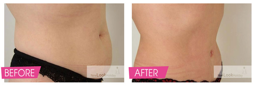 Full Tummy Tuck with muscle tighteting and reposition of navel Before and