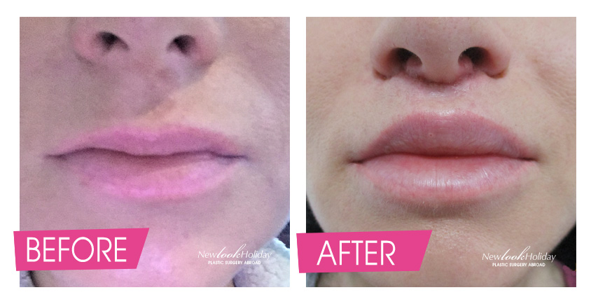 lip-lift-before-after.jpg