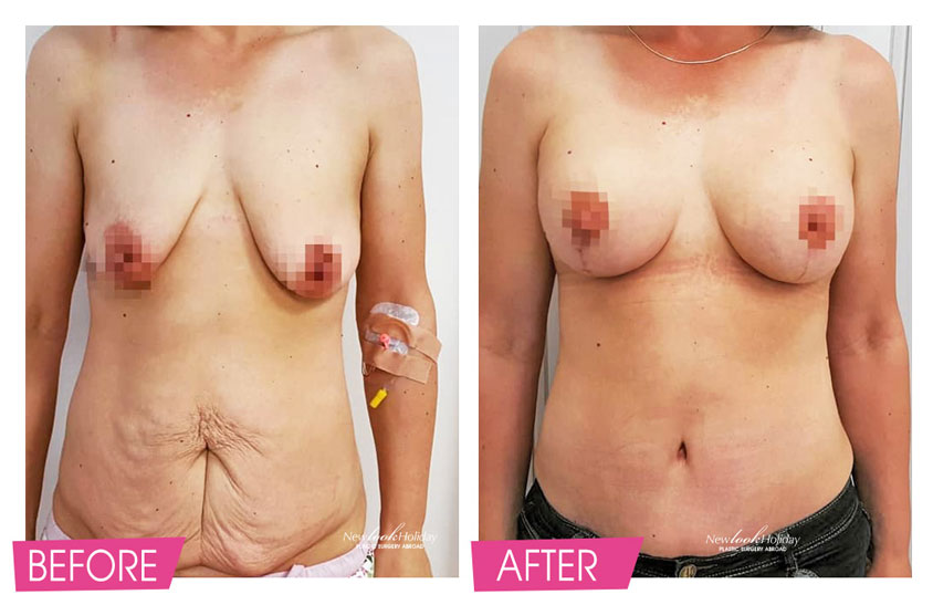 Mommy Makeover - Full Tummy Tuck before and after photos