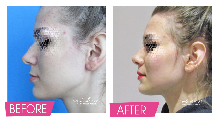 nose-surgery-before-and-after-2.jpg
