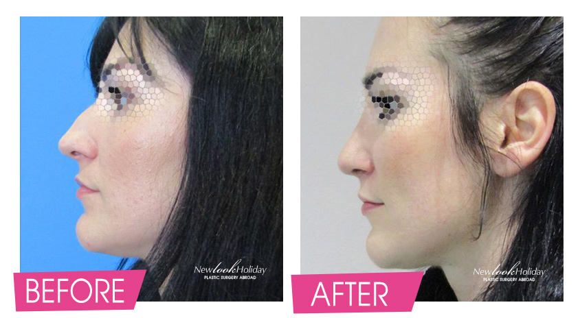 nose-surgery-before-and-after-3.jpg