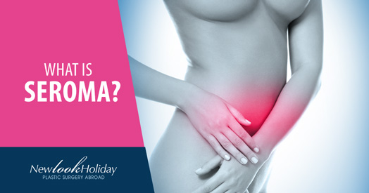 what is seroma image