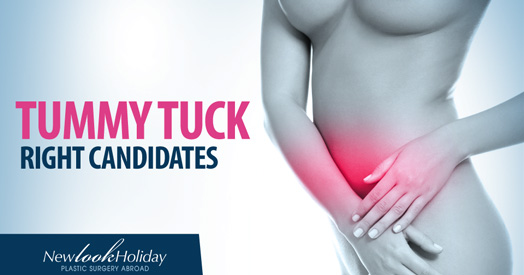 Picture of tummy tuck