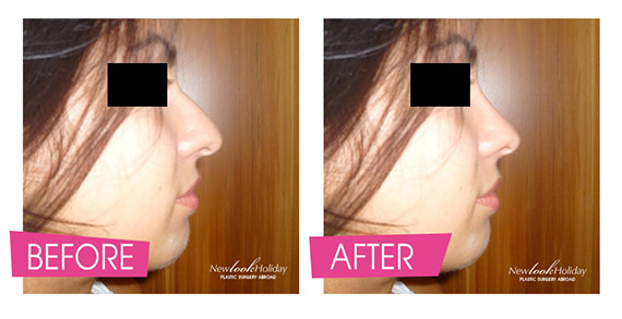 plastic-surgery-imaging-rhinoplasty-psi.jpg