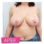 Result of breast reduction after plastic surgery