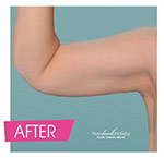 after plastic surgery of arm
