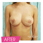 result of breast lift