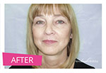 Result photo after facelift surgery
