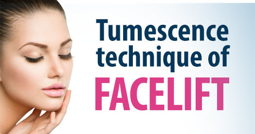 tumescene-technique-facelift.jpg