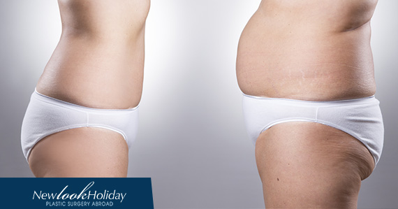 what-is-liposuction.jpg
