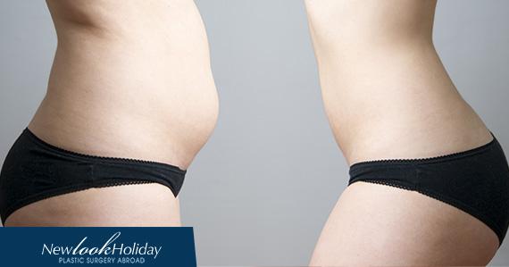 types-of-liposuction.jpg