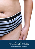 what-is-liposuction-news.jpg