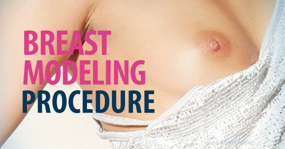 breast-modeling-procedure.jpg