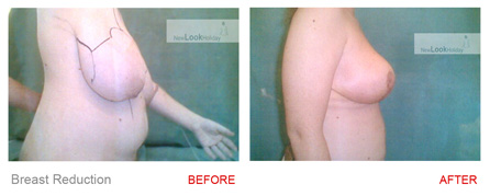 Natural Breast Reduction Clinic Compare