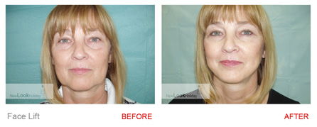 facelift-before-after-b-side