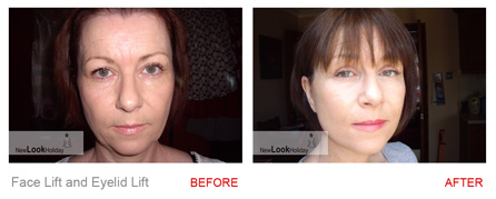 facelift-and-eyelid-before-after